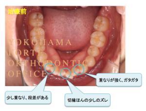 インビザライン マウスピース矯正 治療経過写真 下顎 治療前 コメント付き