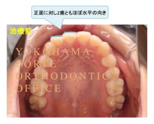 インビザライン マウスピース矯正 治療経過写真 治療前 上顎 コメント付き