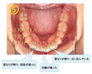 インビザライン マウスピース矯正治療 経過写真 下顎 アライナー5枚目 コメント付き