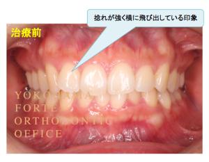 インビザライン マウスピース矯正 治療経過写真(治療前) 正面